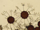 cleistothecia (fruiting bodies) of microsphaera sp.. 2006-11-22, Sony Cybershot DSC-P93. keywords: ascomycota, leotiomycetes, erysiphales, erisyphales, erysiphaceae, erisyphaceae, fruiting body, fruit-body, fruit-bodies, cleitothecium