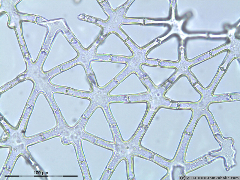 stellate parenchyma (aerenchyma) of juncus sp.